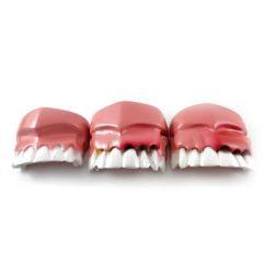 Evolução da doença periodontal - Odontomar